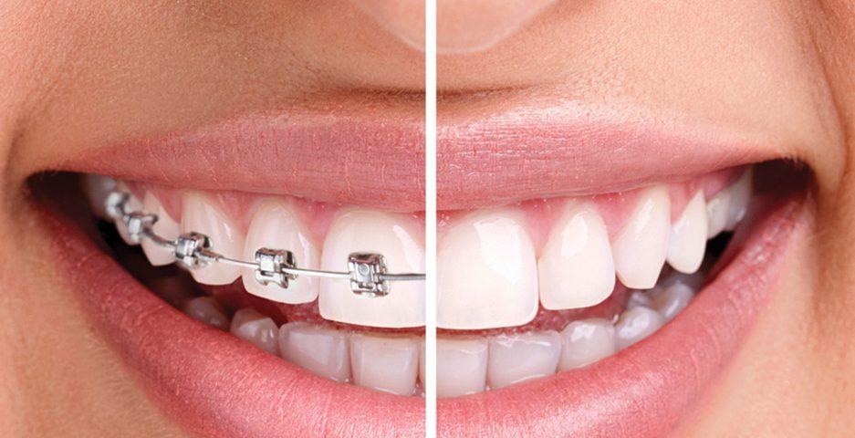 Ortodontik Meselelerin Sebepleri
