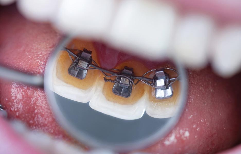 ortodontik tedavi esnasinda disler nasil hareket eder